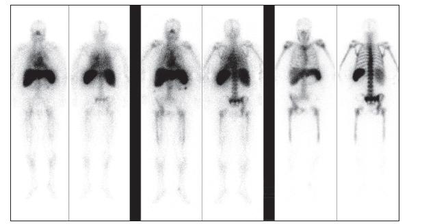 Obr. 1A Scintigrafie značenými leukocyty, celotělové obrazy, pohled přední a zadní. Vlevo 30 minut, uprostřed 3,5 hod. a vpravo 22,5 hod. po aplikaci. Je patrný defekt akumulace v levé polovině pánve.