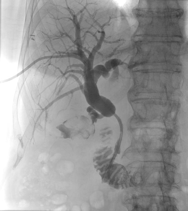 Perkutánní transhepatální drenáž (PTD).