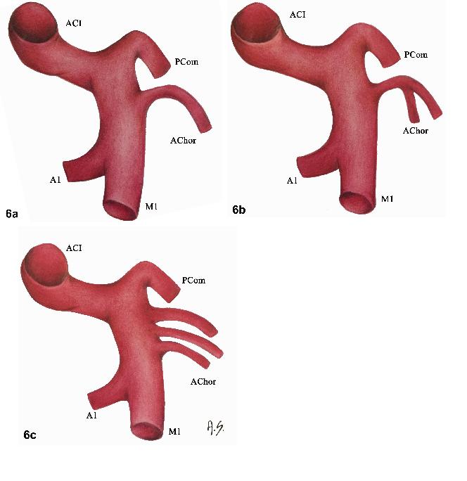 Fig. 6a–c. Most common anatomical variations of anterior choroidal artery.<br> Obr. 6a–c. Nejčastější anatomické varianty arteria choroidea anterior.