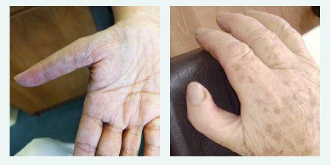 Typické anomálie palce u dvou pacientek s Diamondovou-Blackfanovou anémií. Typický obraz hypoplazie palcového valu (thenar), abnormálního odstupu, délky a tvaru palce u dvou pacientek s pozdně stanovenou diagnózou DBA. Obě pacientky mají mutaci stejného RPL, obě byly vedeny pod jinými diagnózami, správná diagnóza byla stanovena až po 50 letech věku.