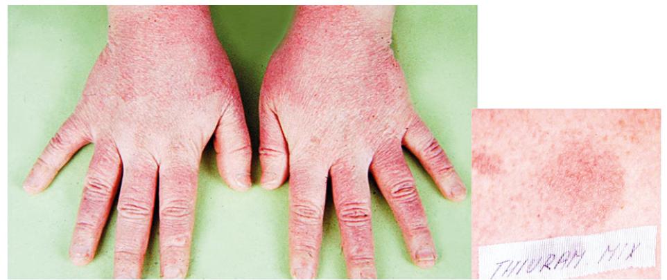 Eczema contactum prof. – guma rukavic – Thiuram-mix – pomocnice ve zdravotnictví