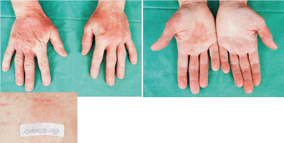 Eczema contactum et atopicum – Quaternium-15++-+++, formaldehyd+++ (kosmetické přípravky), 1,3,5-tris(2-hydroxyetyl)-hexahydrotriazin++, Bioban CS1135++, Bioban CS1246+++, thiomersal++ – uklízečka