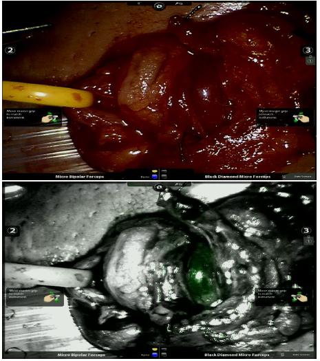 a, b. Zobrazení artérie při mikroskopické varikokélektomii před (a) a po aplikaci ICG (b)<br> Fig. 3a, b. Imaging of artery before (a) and after the application of ICG (b) during microvaricocelectomy