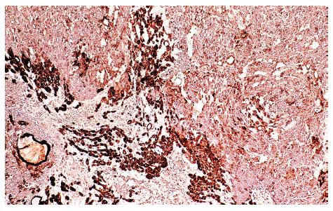 Imunohistochemická exprese cytokeratinu 7 (CK7) v synoviálním sarkomu
