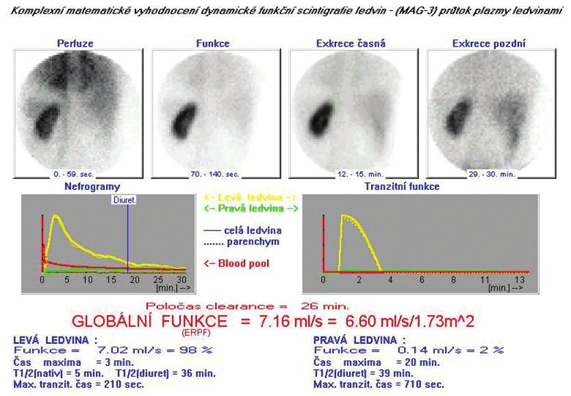 Výsledný protokol dynamické scintigrafie ledvin provedené s 99mTc-MAG3 z programu Ostnucline. Vyšetření potvrzuje funkčně solitární levou ledvinu s jen zbytkovou funkcí pravé ledviny.