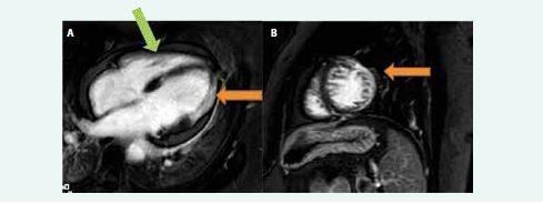 Obr. Magnetická rezonance srdce nemocného se srdeční sarkoidózou. (A) 4dutinová projekce (B) projekce na krátkou osu levé komory. Je patrné rozsáhlé transmurální pozdní sycení gadolinia (LGE) na boční stěně levé komory (oranžová šipka) a drobné intramurální sycení na mezikomorovém septu (zelená šipka).