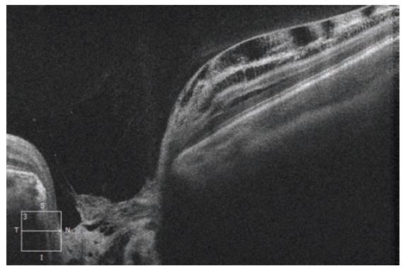 HD-OCT: Lineární horizontrální transpapilární sken pravého oka, rozsáhlá JTZN překryta hyperreflektivní tkání. Nasálně obraz schisis-like retinopatie se separací jednotlivých retinálních vrstev