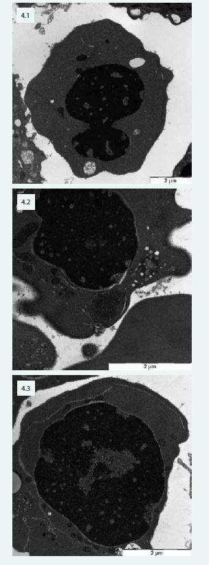 """Změny typické pro CDA v elektronovém mikroskopu – pacientka s CDA IV: 4.1 – jaderný můstek v erytroblastu a defekty chromatinu (""""spongychromatin"""") 4.2 – """"spongychromatin"""", atypické lamelární tělísko, siderosom 4.3 – intermediární atypická cisterna v erytroblastu"""