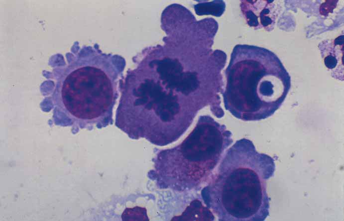 Cytology in cerebrospinal fluid.