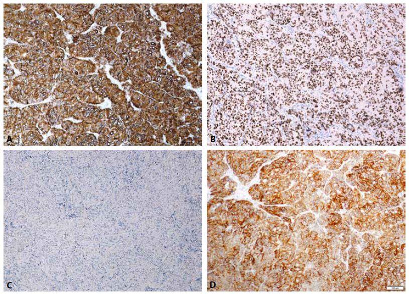 Imunohistochemický nález: Silná membránová pozitivita Ki-67 (A, zvětšení 100x). Pozitivní jaderná exprese TTF-1 (B, zvětšení 100x). Negativní exprese CK19 (C, zvětšení 100x). Pozitivní membránová exprese CD56 (D, zvětšení 100x). Negativní exprese HMBE-1 není znázorněna.