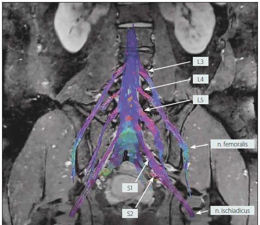 MR traktografie oboustranného lumbosakrálního plexu u zdravého dobrovolníka (muž, 25 let).<br> Fig. 5. MR tractography of the bilateral lumbosacral plexi in a healthy volunteer (male, 25 years).