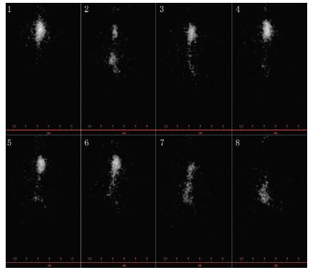 Scintigrafie jícnu: vyšetření polykacího aktu (per os podání 40 MBq 99mTc – Sn koloidu) u pacientky s dysmotilitou jícnu při SSc – vybrané snímky (z archivu Revmatologického ústavu). Významně narušená motilita jícnu: po polknutí kontrastní látka (KL) setrvává po celou dobu vyšetření ve střední třetině jícnu (snímek 1 až 6), na okamžik se cca 20 % KL dostává do žaludku (snímek 2), načež dochází k regurgitaci (snímek 3 až 5), ke konci vyšetření zvolna proniká do žaludku (snímek 8).