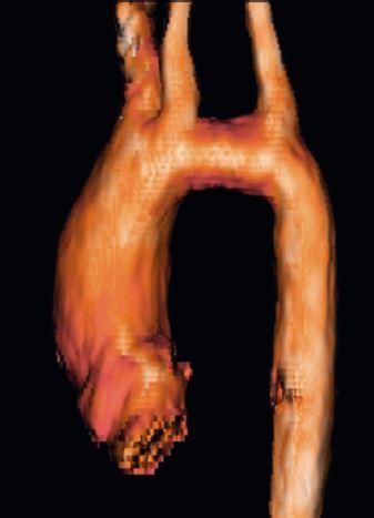 Elongace transverzálního aortálního oblouku – 3D rekonstrukce z vyšetření magnetickou rezonancí (archiv autorů).<br> Fig. 5. MRI reconstruction image demonstrating elongated transverse aortic arch (authors archive).