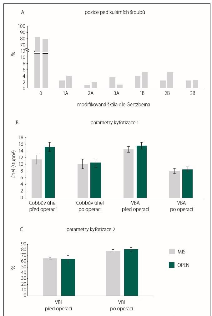 Uložení transpedikulárních šroubů při hodnocení na postoperační CT (A), radiologické parametry kyfotizace (B, C). MIS – skupina pacientů, kteří byli operováni miniinvazivně perkutánní metodou stabilizační operace zavedením pedikulárních šroubů; OPEN – skupina pacientů, kteří byli operováni klasickou otevřenou metodou zadní stabilizace; VBA – angulace obratle; VBI – poměr komprese obratle<br> Fig. 3. Pedicular screw position on postoperative CT scan (A), radiological parameters of kyphotisation (B, C). MIS – group of patients who were operated on by mini-invasive percutaneous posterior stabilisation; OPEN – group of patients who were operated on by classic open posterior stabilisation; VBA – vertebral body angulation; VBI – vertebral body index