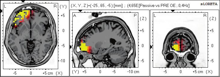 Statistické ne-parametrické mapy sLORETA diference v beta-1, 2 pásmu při porovnání pozorování pasivního sledování pohybu prováděného terapeutem oproti klidovému záznamu při otevřených očích. Červená a žlutá barva znamená zvýšení zdrojové aktivity nad levou hemisférou frontálně v BAs 47, 10, 11. Anatomické řezy Talairachova obrazu mají šedou barvu (L – vlevo, R – vpravo).