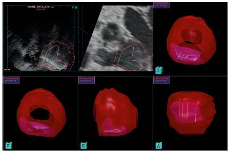 Report TRUS/MRI fúzní biopsie – pacient 68 let, dosud nebioptován, PSA 31,43, mpMRI – ložisko PI-RADS 5 v pravé periferní zóně, histologicky adenokarcinom prostaty Gleason 4+5=9