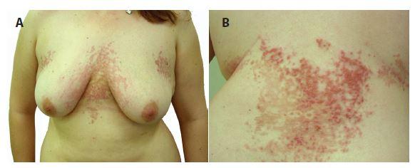 a, b. Prurigo pigmentosa eytematózní retikulárně splývající makulopapuly až papulovezkuly s krustami přecházející v hnědé hyperpigmentace