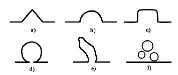 Schematický diagram možných tvarů isthmokély podle sonohysterografie