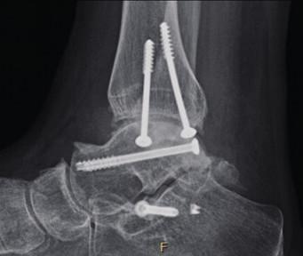 Artróza hlezna dle RTG vyšetření (AP a bočná projekce hlezna)