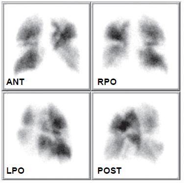 Obraz distribuce plicní perfuze 22. 9. 2008 prokazuje recidivu embolie do plicnice – jsou patrné vícečetné segmentové defekty v obou plicních křídlech.