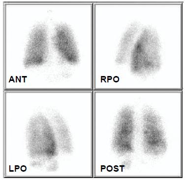 Scintigrafie plicní ventilace 6. 3. 2008. Distribuce je zcela homogenní, potvrzuje tedy embolizační příčinu perfuzních defektů
