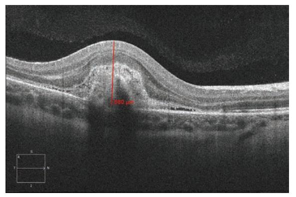 Spektrální HD OCT: Lineární horizontální transfoveolární sken OD. Výrazné ztluštění a zvýšení objemu makulární oblasti s patrným středně hyperreflektivním ložiskem aktivní CNV, kolem ložiska plochá serózní ablace smyslového epitelu. Tloušťka juxtafoveolární oblasti 680 μm v době stanovení diagnózy