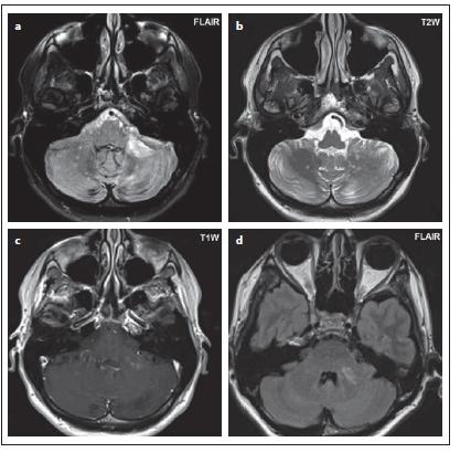 Pacient č. 4: jsou patrná drobná hypersignální ložiska v obou mozečkových hemisférách v sekvenci FLAIR, rozsáhlejší ložisko ve středním mozečkovém pedunkulu l. sin (a, d), tečkovitá hypersignální ložiska v T2 váženém obraze (b), po podání kontrastní látky je patrný enhancement (c).<br> Fig. 3. Patient No. 4: small hypersignal foci in both cerebellar hemispheres in the FLAIR sequence, with larger focus in the left middle cerebellar peduncle (a, d), dot hypersignal foci in T2WI (b), enhancement is evident after administration of contrast medium (c).