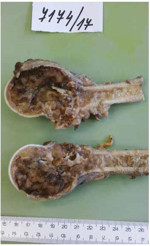 Resekát proximální části humeru s expanzívní nádorovou kavitací ztenčující a místně rozrušující kortikální kost, bez známek šíření do okolí.