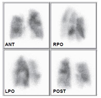 Recentní scintigrafie plicní perfuze 26. 4. 2010. Jsou patrné vícečetné segmentární defekty perfuze v obou plicních křídlech. Vzhledem ke zhruba dvouměsíční anamnéze dušnosti již není ohraničení defektů příliš ostré, nicméně interpretace je jednoznačná.