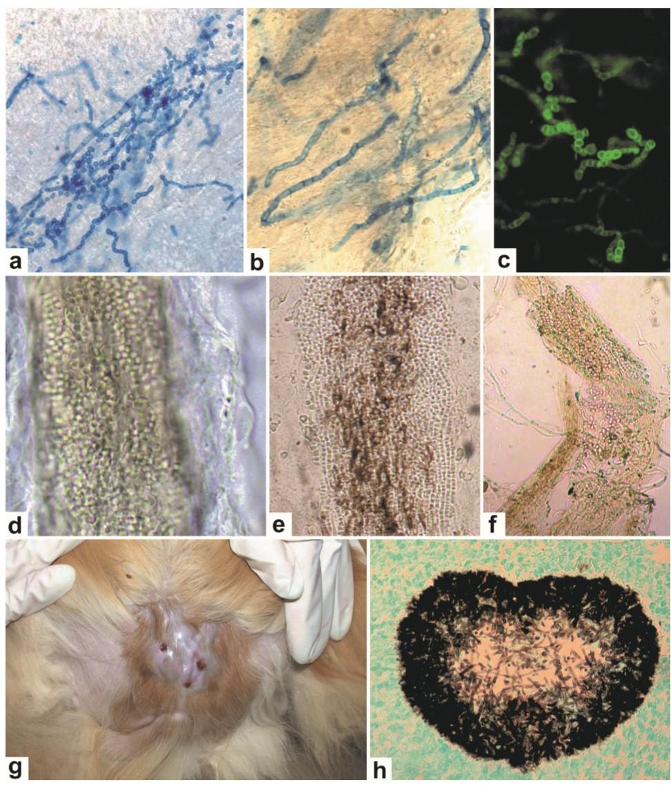 Laboratorní diagnostika dermatofytóz pomocí přímé mikroskopie a histologie.