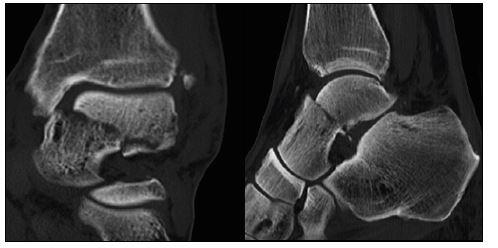 a,b: CT zlomeniny krčku talu – sagitální a koronární řezy
