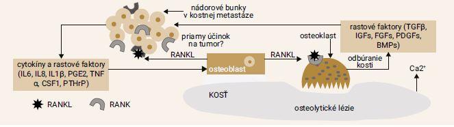 Schéma 1 | Vplyv nádorových buniek na proliferáciu osteoklastov