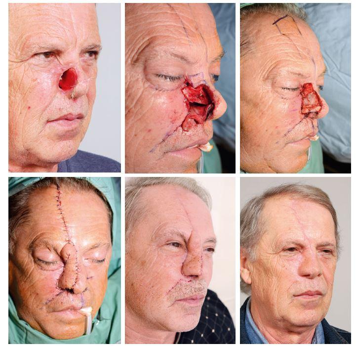 Třífázová rekonstrukce nosu čelním lalokem: A) defekt pravé poloviny nosu po radikální onkologické resekci, B) nadzvednutí ipsilaterálního a kontralaterálního septálního laloku k rekonstrukci nosní výstelky, C) rekonstrukce opěrné vrstvy septální a konchální chrupavkou, D) stav po krytí paramediánním čelním lalokem, E) stav po II. fází rekonstrukce – ztenčení čelního laloku, F) výsledný stav po rekonstrukci.