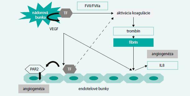 Schéma. Vplyv nádorovej bunky na koagulačný systém organizmu. Upravené podľa [6]