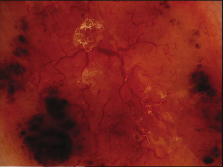 Arborizující cévy, eroze, ovoidní struktury – nodulární bazaliom