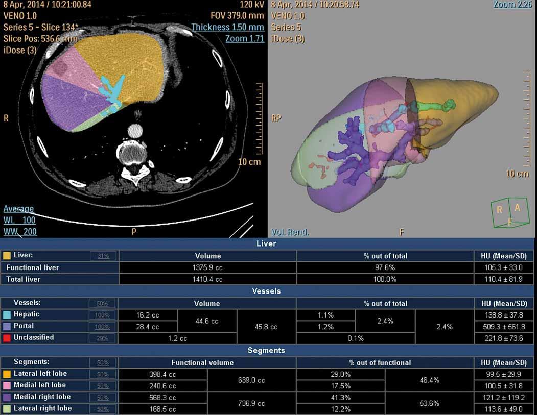 CT volumetrie po portální venózní embolizaci (hypertrofický levý lalok s jizvou po radiofrekvenční ablaci).<br> Fig. 2. CT volumetry following portal venous embolisation (hypertrophic left lobe after radiofrequency ablation).