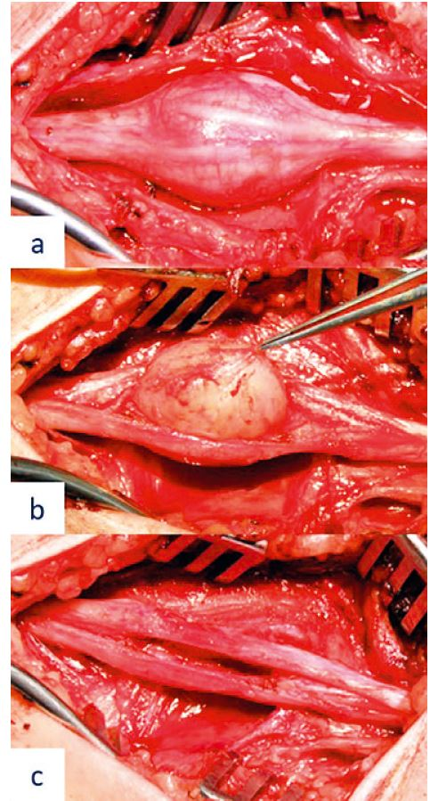 Peroperative image of the median nerve schwannoma resection – (a) fascicle course on the surface of the tumour preceding tumour resection, (b) microsurgical tumour resection, and (c) preserved neural structures following radical tumour resection